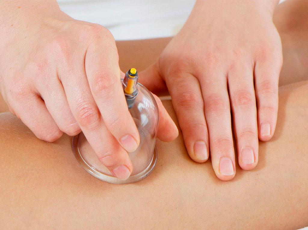 массаж силиконовыми банками для похудения
