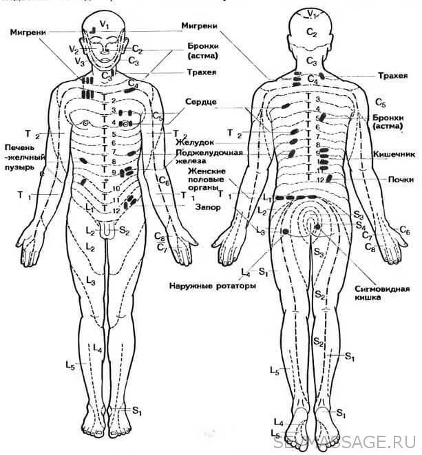 Определение триггерных точек на теле